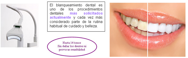Especialistas en Blanqueamiento Dental